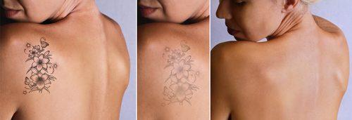 Which Laser Tattoo Removal Is Best?   Aspire Medispa Blog