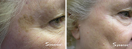 Before and after of an elos foto-facial treatment.