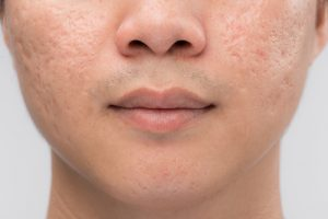 Up close photo of a person with acne scars on the face