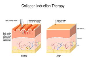 A depiction of how microneedling works to smooth skin on the body.