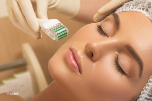 Women can undergo a microneedling procedure to increase the collagen and elastin production in her face.