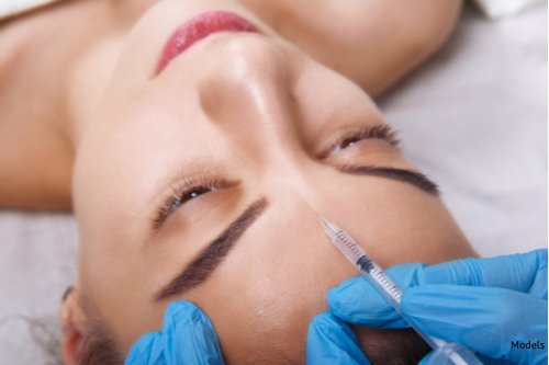 A woman received an injectable filler to soften the wrinkle prone areas and improve her facial scars