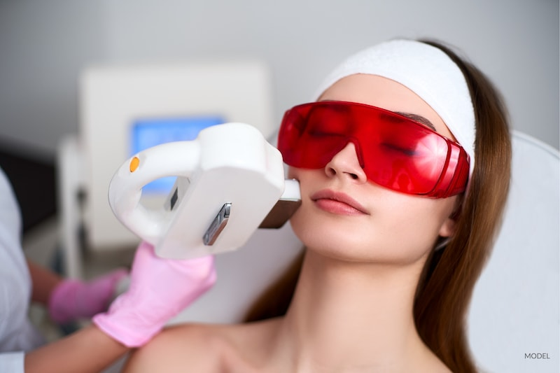 Woman undergoing an elos laser treatmetn at her medispa. Protected by red eye goggles.